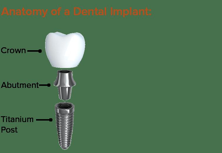 Anatomy of a Dental Implant
