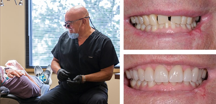 Dr. Farmer is a meticulous cosmetic dentist in Wichita. Check out his work