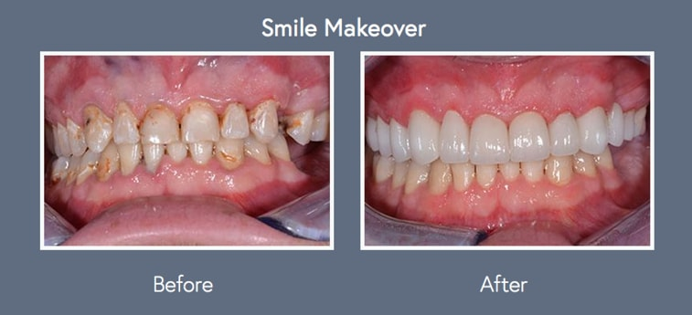 Check out the work from Dr. Farmer, cosmetic dentist in Wichita