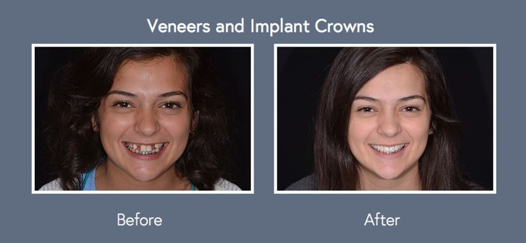 Our Wichita Dentist's Patient Spotlight features Veneers, Implant Crowns, and Smile Restoration