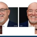 Dr. Farmer's before and after photos from his smile makeover with veneers