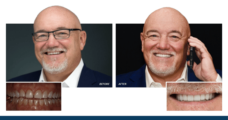 Dr. Farmer's Very Own Smile Makeover with Veneers [Before & After Photos]